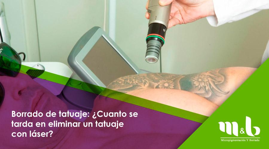 Borrado De Tatuaje Cuanto Se Tarda En Eliminar Un Tatuaje Con