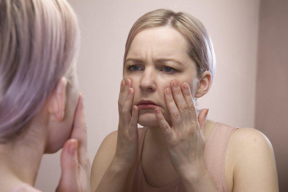 cómo hacer que un ojo hinchado baje después de una pelea